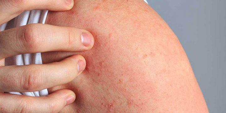 Mẹo trị bệnh nổi mề đay thường dùng